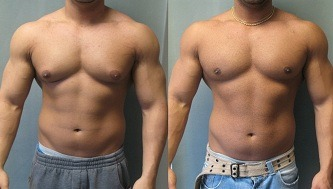 Gynexin Before And After Daniel M